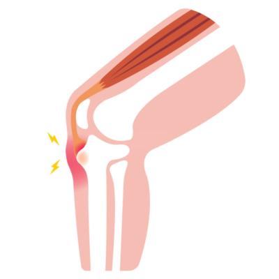 اصابات الملاعب الغضروف الهلالي للركبة