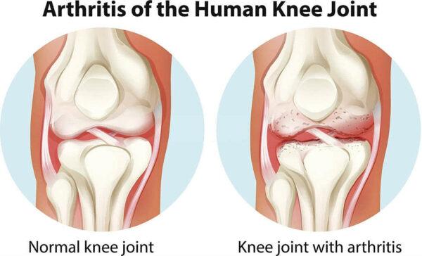 الفرق بين الركبة السليمة والمصابة بالخشونة