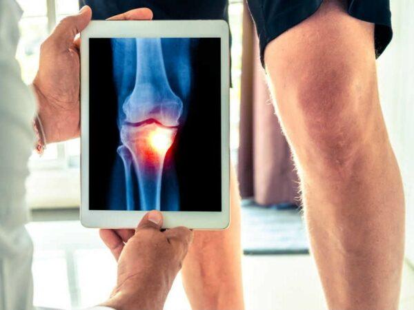 أشعة خشونة مفصل الركبة